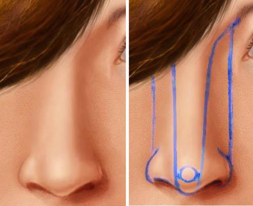 Ринопластика носа - все за и против